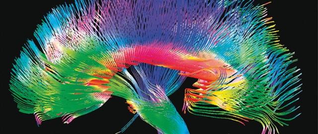 """Mozak, skeniran, izgleda kao """"polje pšenice koja se talasa vetrom"""""""